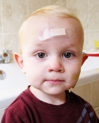 AJ bandaged