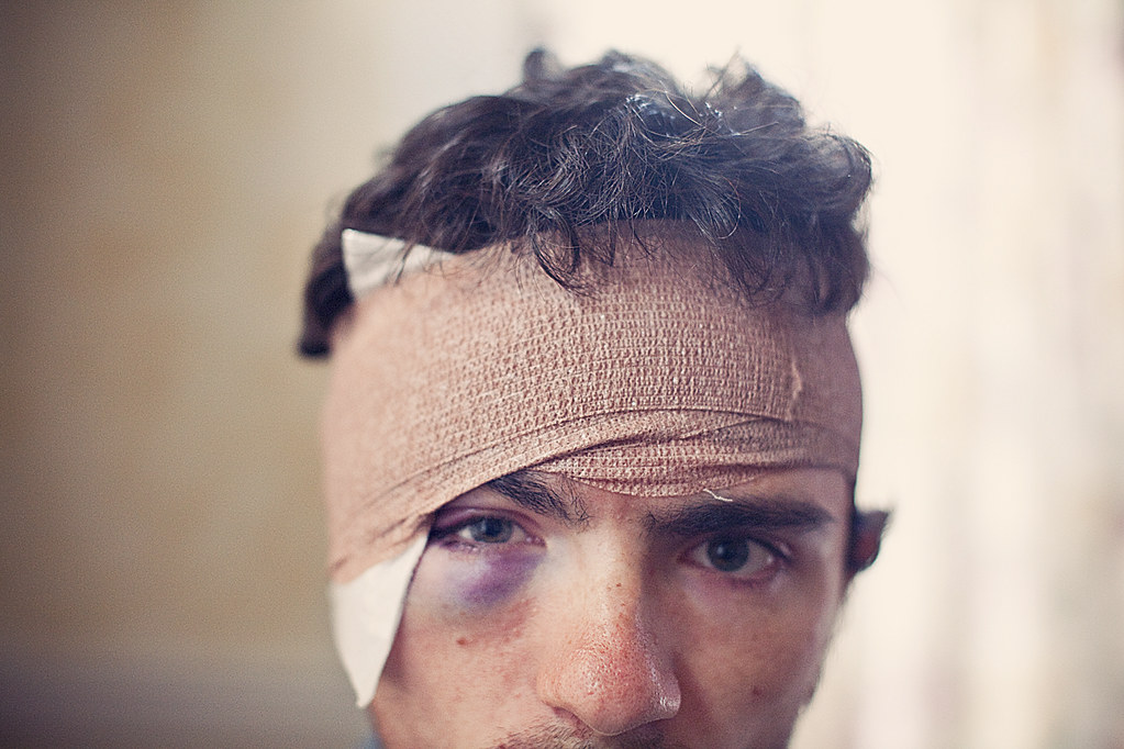 The World's most recently posted photos of injury and swelling