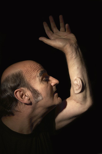 Stelarc: Ear on arm; image held here