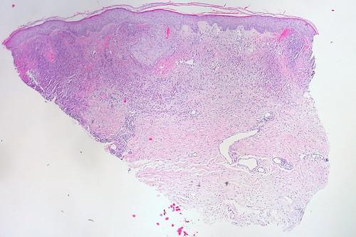 mesothelium membrane