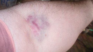 Yet Another Bad Phlebotomy Job
