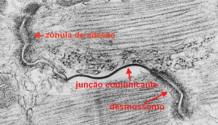 Disco intercalar ao Microscópio Eletrônico