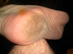 My rough heel (close up) (Night Time Barefooter) Tags: man male guy feet walking toes walk dirty barefoot heels rough tough soles barefooting calloused barefooter barfus