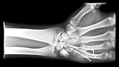 X-Rays 7 (drewcloke) Tags: broken blackwhite injury pins surgery medical xray wrist metacarpal lightroom kirschner kwires hamate