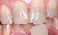 歯のホワイトニング 処置前