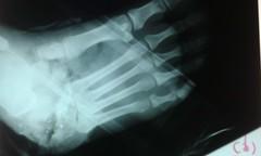 IMAG0046 (phalinn) Tags: foot xray bone limbs hip femur tibia ankle fibula orthopaedics fractures