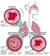 Asthma: Mild and Chronic
