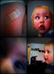 Efter vaccinationen