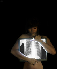 Day 53/365 - Feel My Bones (emyah) Tags: portrait self project ray all glow bad screen x have dont pack xray bones damn thats 365 too six emyah weee3