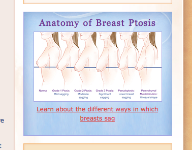 Anatomy of Breast Ptosis Image from Parker Center for Plastic Surgery