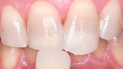 歯のホワイトニング 処置後