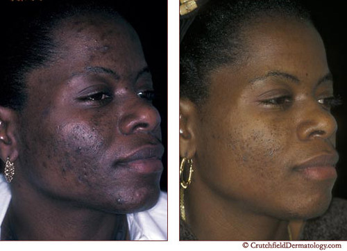 dark skin treatment