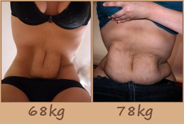 lös hud på magen