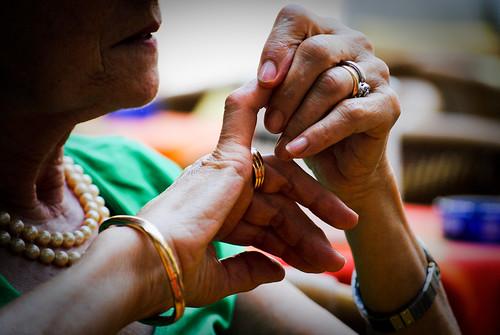 Dermatite varicosa su mani di fotografia