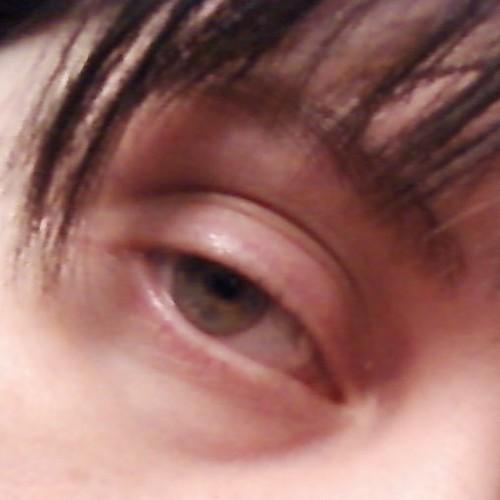 stoned dr. eye