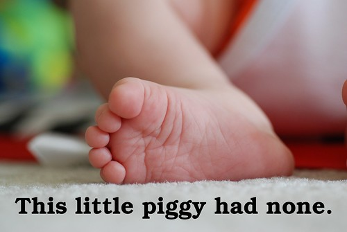 This little piggy had none