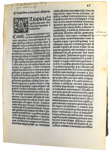 Page of Text with Woodcut Initial from 'Lilium Medicinae'
