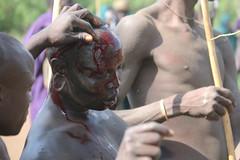 Wounded in battle (martien van asseldonk) Tags: martienvanasseldonk ethiopia donga surma surmi stickfighting