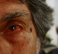 άι άι άι (oxiegw) Tags: eye trauma