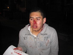 Hate Crime Beating (RYANISLAND) Tags: nose fight blood nypd mexican spanish crime hate violence latino bloody fighting hatred racism immigration crisis beatup beating reform bloodynose hatecrimes hatecrime illegalimmigration
