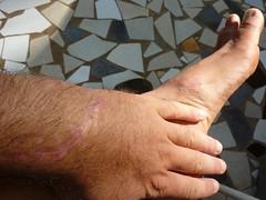 Clean scars (Peter Gostelow) Tags: foot wrist machete scar