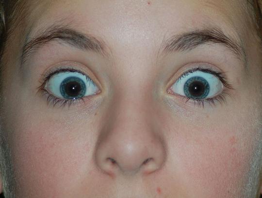 yeux-rouges-photoshop-apres
