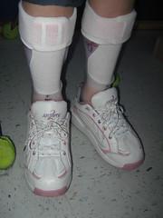 Cassie's new legs