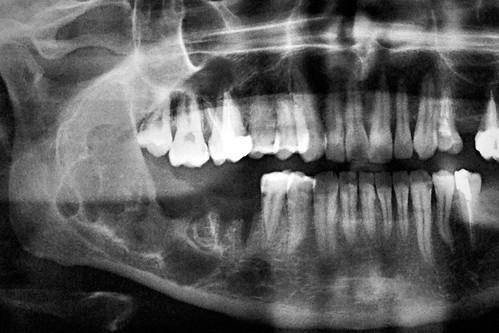 Simple+bone+cyst+jaw