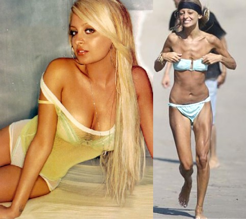 nicole richie anorexic. nicole richie anorexic. Nicole Richie - Anorexia