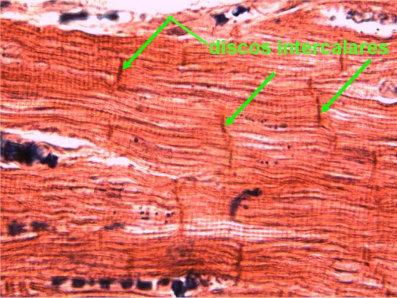 músculo cardíaco 2