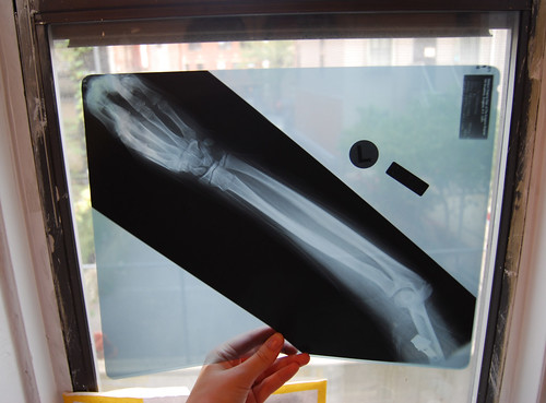found someones xray in the street