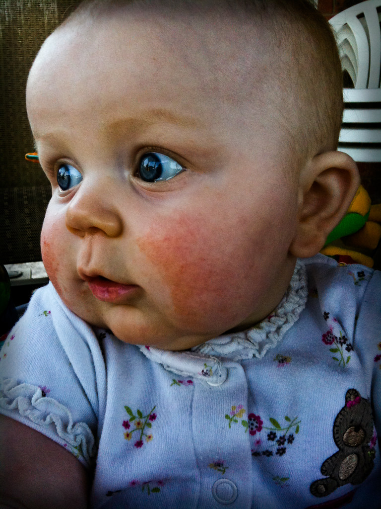 Skye's Rosy Cheeks