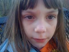 Sophie After Faceplant