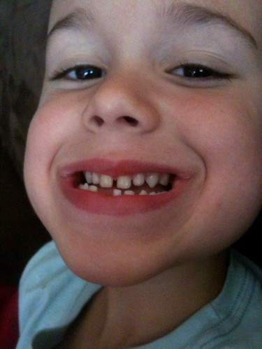 Taylors first missing tooth!
