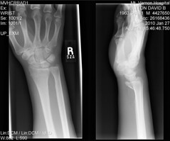 The World's Best Photos of wrist and xray - Flickr Hive Mind