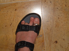 zeh ab 2 (lovefeet22) Tags: missing toe ring amputee toeamputee