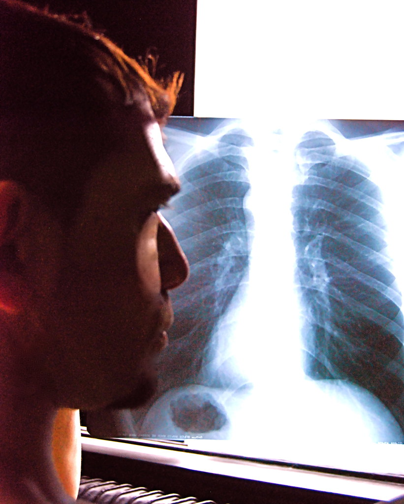 The World's Best Photos of me and radiology - Flickr Hive Mind