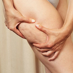 Cellulite: A common concern