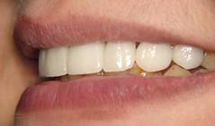 1 (9) (smile clinic) Tags: new smile dr 11 right osama syria clinic dentist find dentistry cosmetic porceline aesthetic dentists consultation alawi veneers     oussama    alaoui 00963 3334484 wwwsmileclinicinfo esthetiquedusourire lasyrie porcelaindentalveneera glamsmile