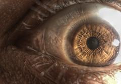 Me in my eye.