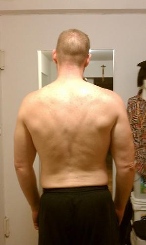 my lumpy back 20100616
