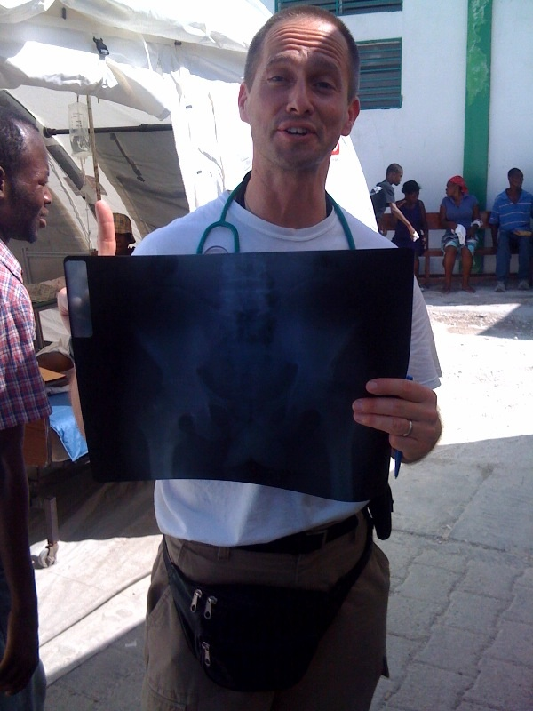 The very first x-ray #HaitiDrDispatch