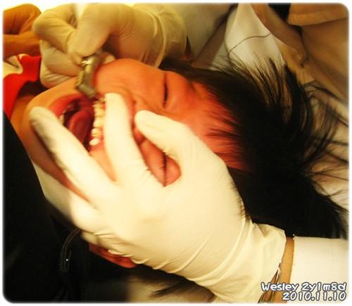 101110-清理牙垢-1