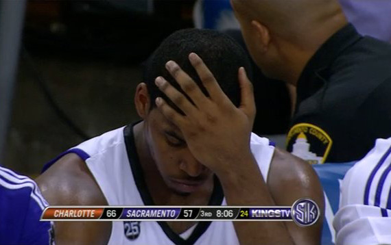 Kings facepalm