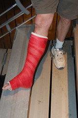a injured leg