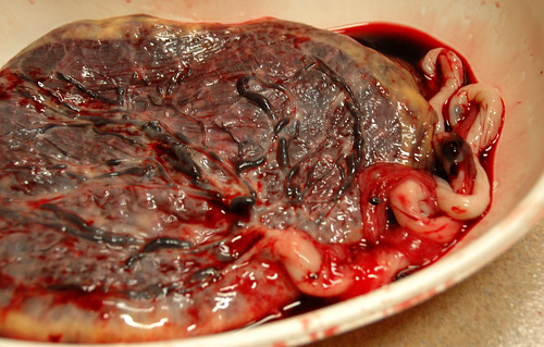 Eating the placenta