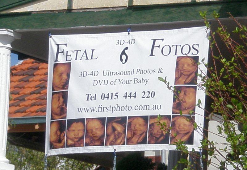 fetal