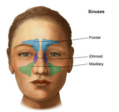 Sinuses Illustration - St. Louis Children's Hospital