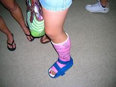 MjQ2ODYzNjA5MDA4OTc2Njk2MnhrdlBPYV9waC5qcGc (chilltown1) Tags: toes cast ankle