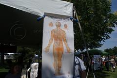 Akupunktur kan hjälpa mot smärta